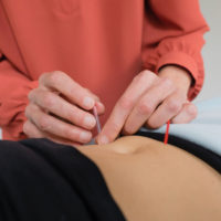 FAQ: Does Acupuncture hurt?